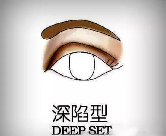 深陷型这样的眼型在欧美人里很常见,亚洲人里比较少见但是仍可以见到。要是再有个黑眼圈被当做外星人,就真是悲剧了!避免在眼窝处使用深色眼影,应涂抹浅色或珠光亮色的眼影,增加眼部柔和感,眉骨处的色彩不可夺目,这样可减轻明显的凹陷感。在增加了一些亮色后,用红色系或者暖色金属色调的眼影在双眼皮部位画上,来提亮眼睛的自然阴影。